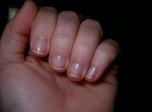 20081122ongles