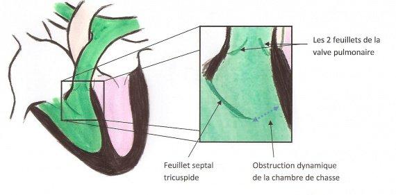 Obstruction dynamique de la CCVD (2)