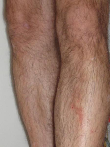 Diagnostic complémentaire à celui de mon dermato : à l'aide ...