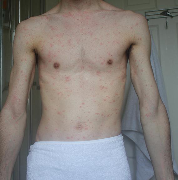 plaque rouge sur le haut du corps