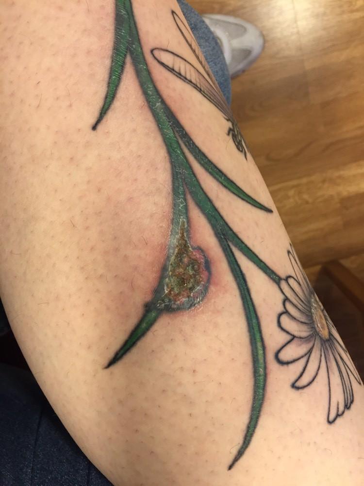 Infection Reaction Couleur Tatouages Et Piercings Forum Beaute