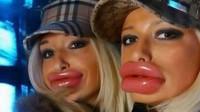 les-pires-fails-de-la-chirurgie-esthétique-des-lèvres-1