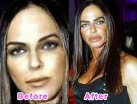Michaela-Romanini avant et apres chirurgie esthetique