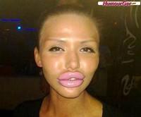 les-pires-fails-de-la-chirurgie-esthétique-des-lèvres-4