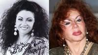 Jackie Stallone avant et apres chirurgie esthétique pire des pires