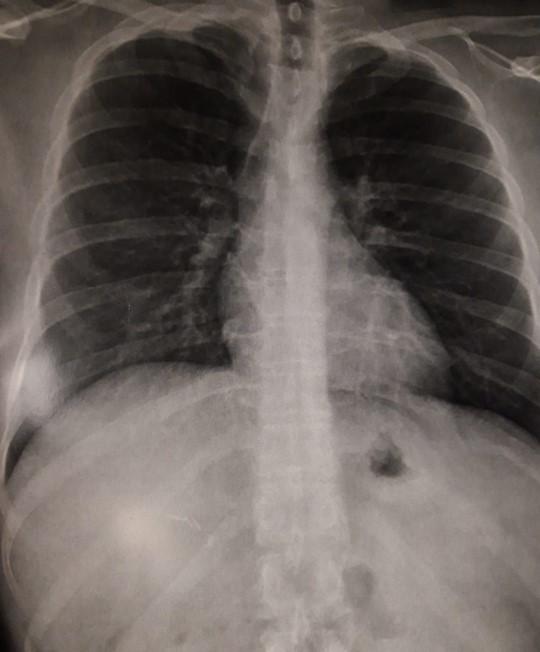 Radio poumons