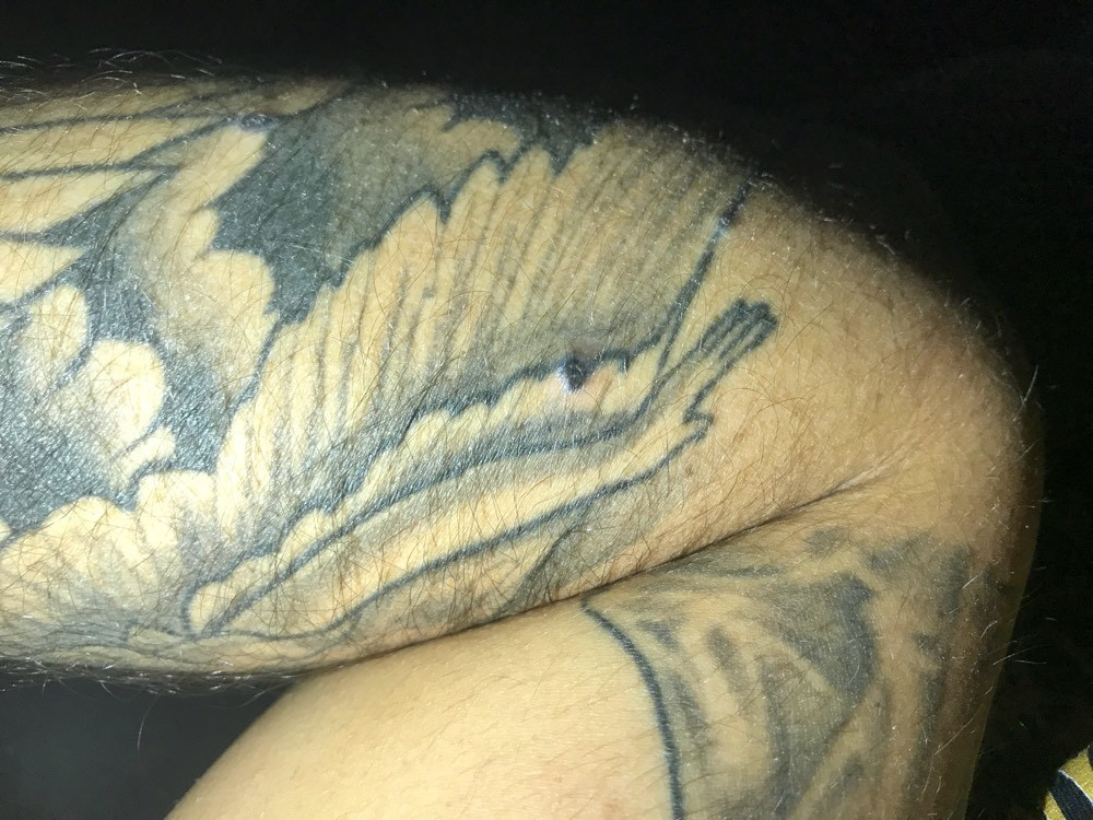 boutons sur tatouage ! - acné, psoriasis et problèmes de peau