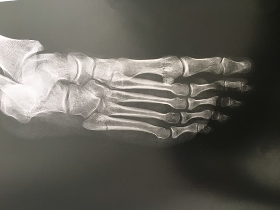 5eme metatarse fracture