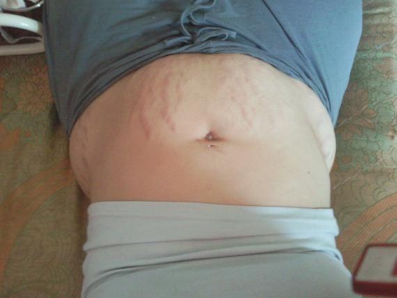 5 mois et demi aprés accouchement
