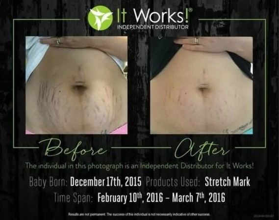 it-works-stretch-mark-cream-2-months