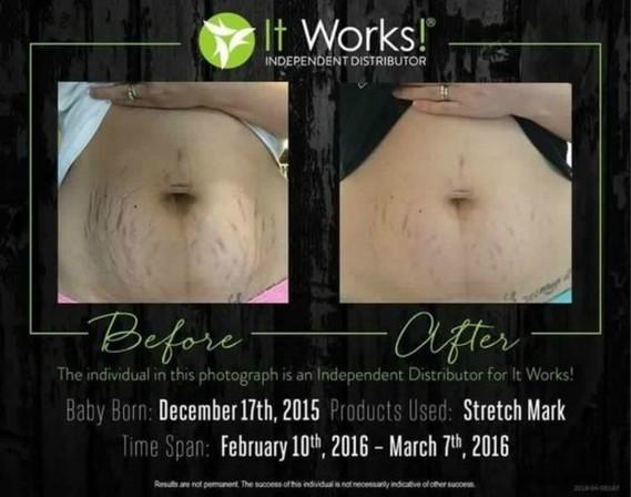 it-works-stretch-mark-cream-2-months