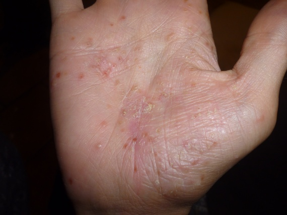Atopitchesky la dermatite de doré stafilokokka