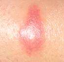 Allergie dû à une piqure d'insecte ou moustique ?