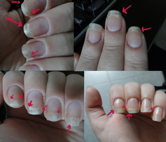 Sos ongles tach s nail art is easy - Tache de calcaire sur les vitres ...
