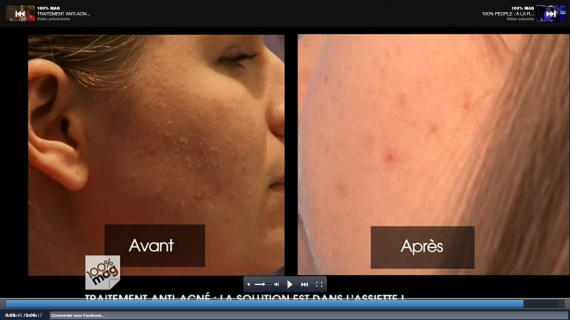 acné camille apres 3 semaines