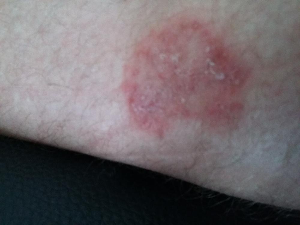Les éruptions sur la peau le psoriasis