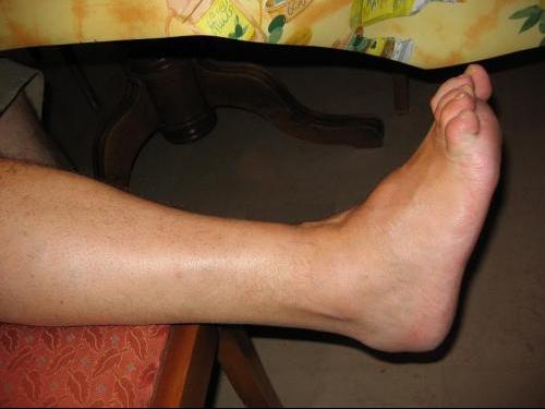 pied enfle sans douleur