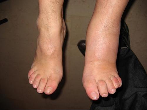 pied gauche enfle et douloureux