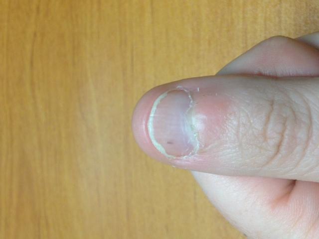 trait noir ongle pied