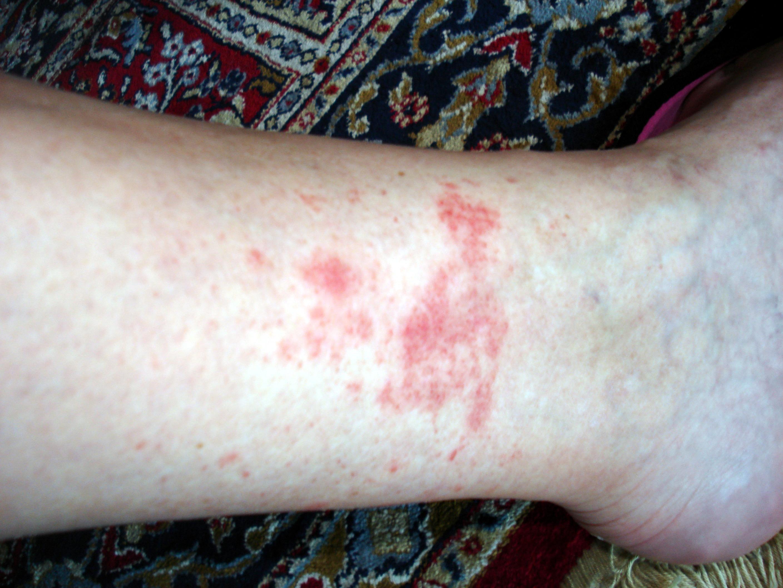 allergie transpiration plaque rouge