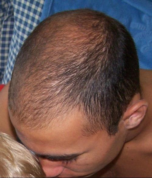 Jeune et chauve calvitie et perte de cheveux forum sant for Perte de cheveux homme