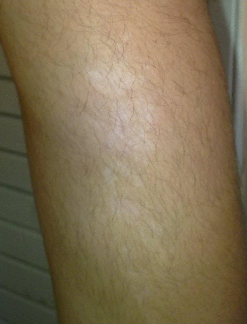 champignon peau tache blanche bras