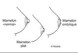 Le col cervical à osteokhondroze le vertige