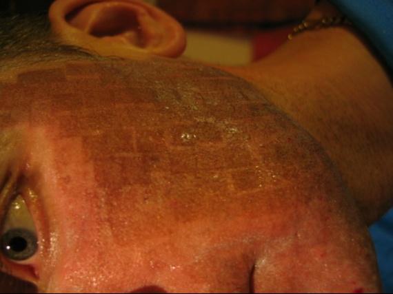 laser co2 fractionn pour traitement de cicatrices chirurgicales acn psoriasis et probl mes. Black Bedroom Furniture Sets. Home Design Ideas
