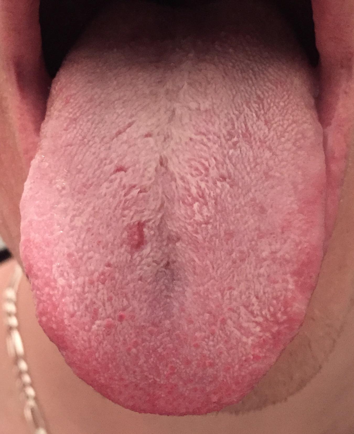 langue blanche mauvaise haleine traitement