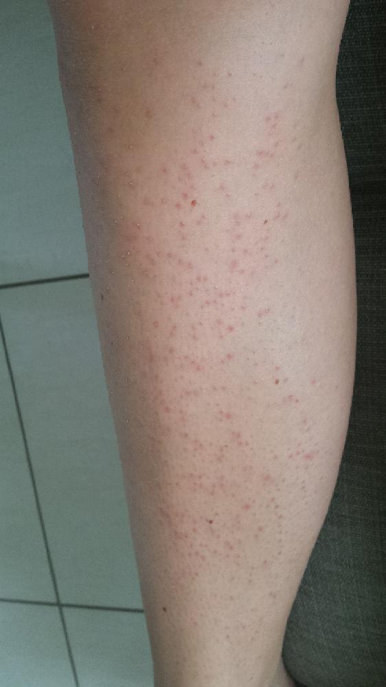 Boutons sur les jambes après s'être rasée - Beauté de la ...