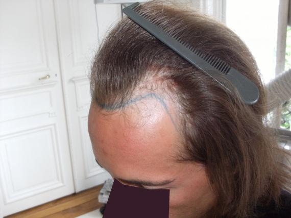 Chute cheveux femme greffe