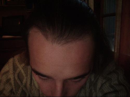 photo de vos cheveux - Calvitie et perte de cheveux
