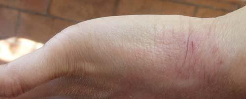 rougeurs sur la main poignet allergie contact allergies et ecz ma forum sant. Black Bedroom Furniture Sets. Home Design Ideas