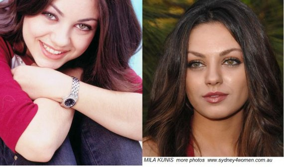 mila-kunis-before-after-cosmetic-surgery