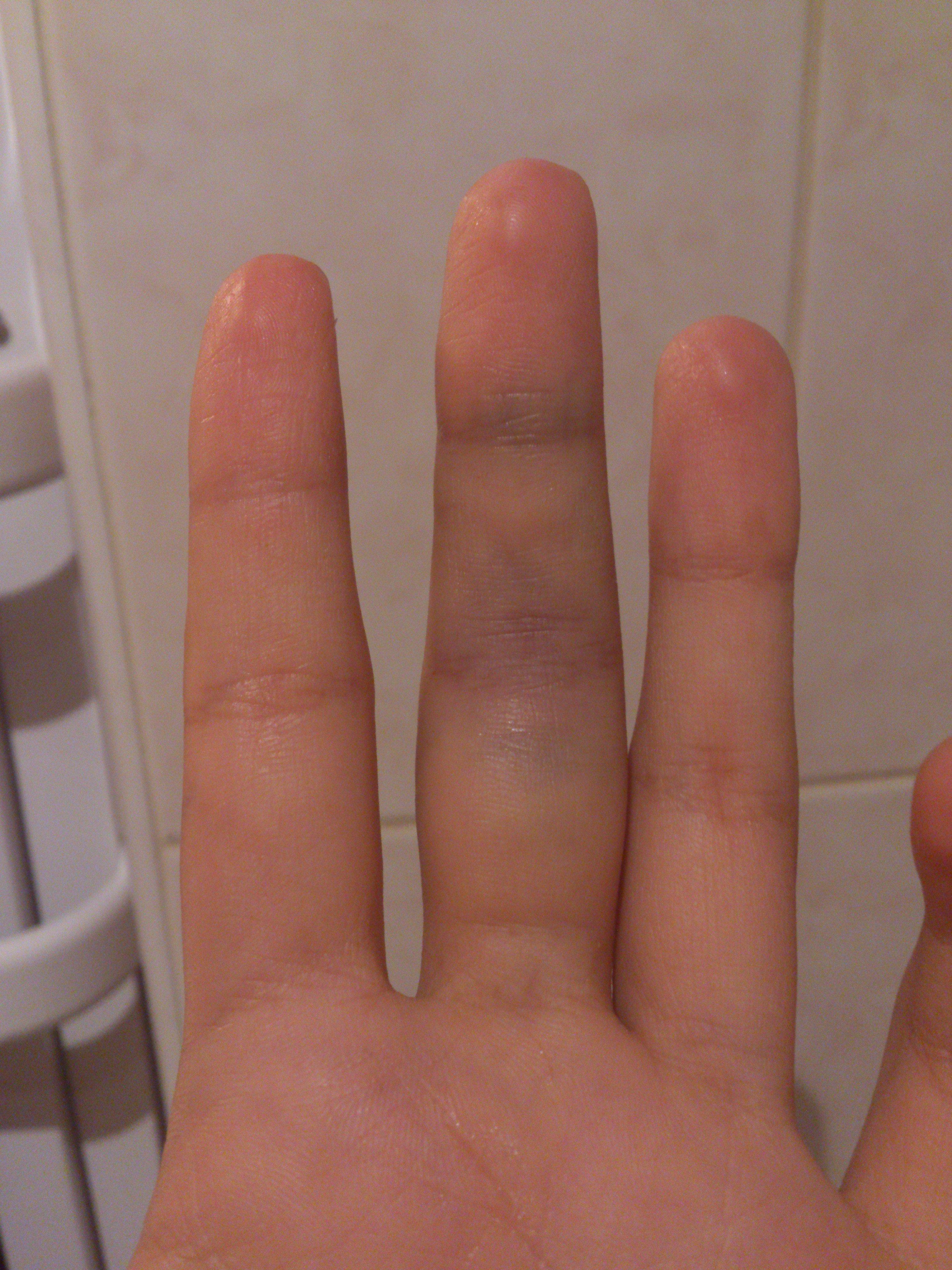 comment soigner foulure doigt