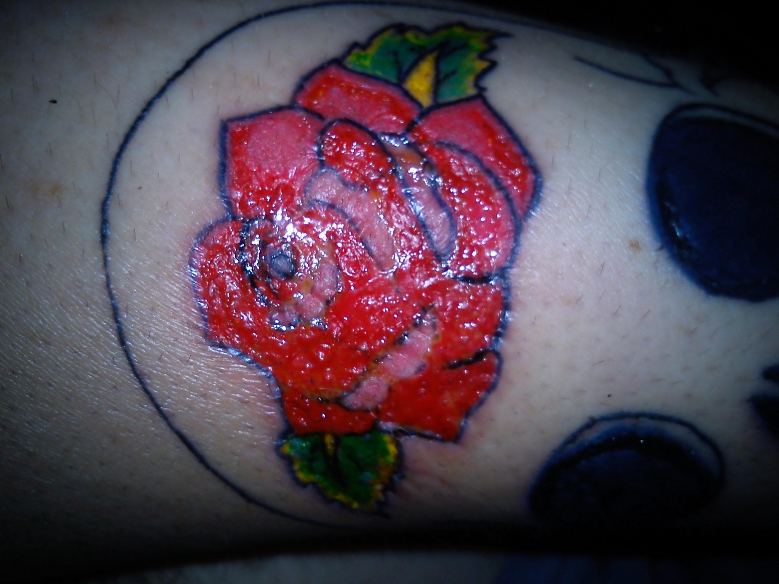 Help Mon Tatouage A Peler Mais N Est Pas Du Tout Cicatrise