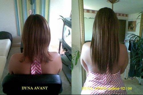 DYNA (2)