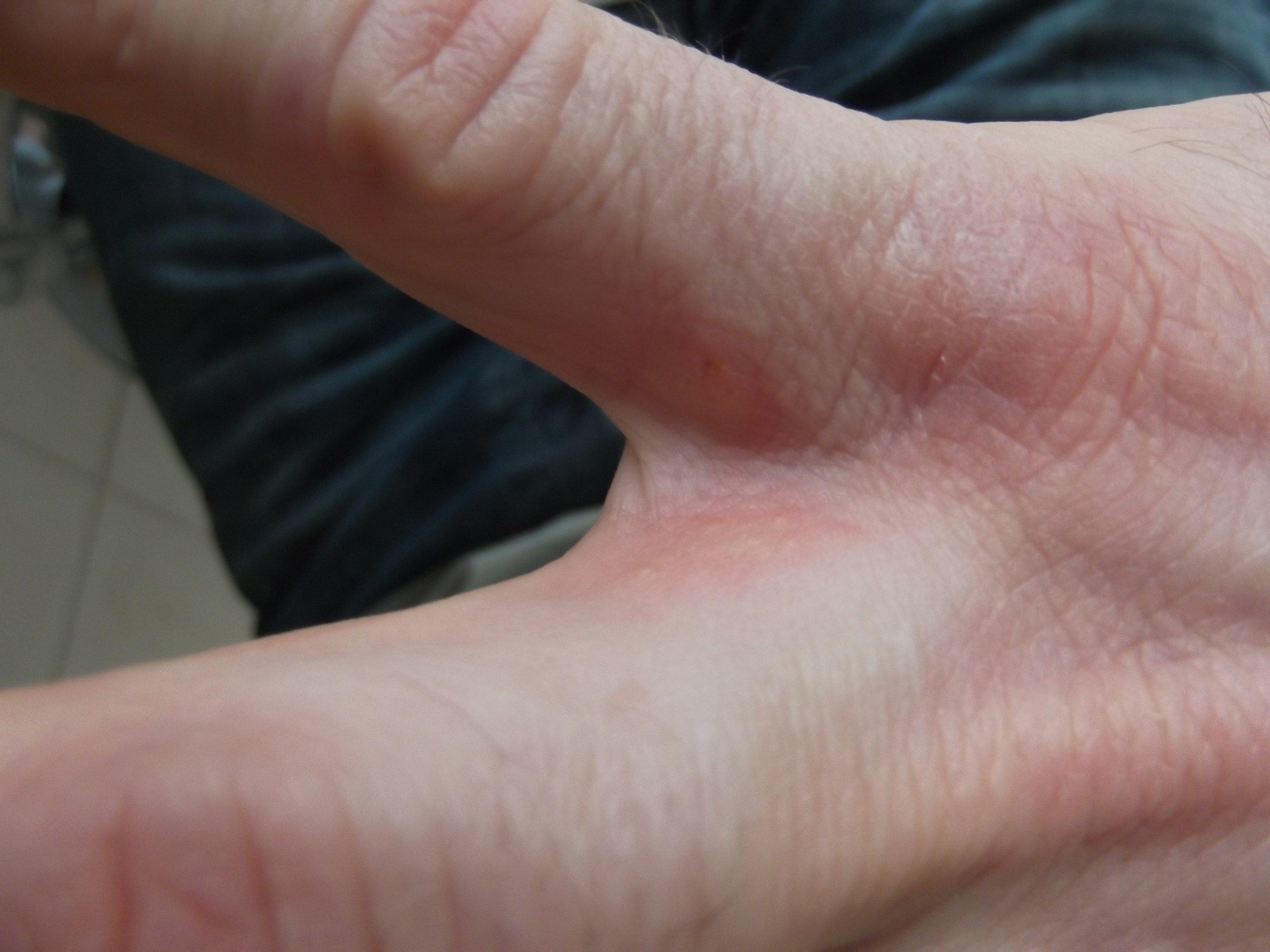 la gale bouton entre les doigt