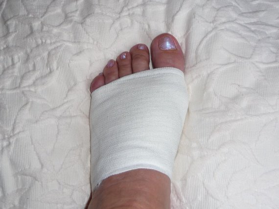 photo-hv-gauche-pied-semaines-strapping-img
