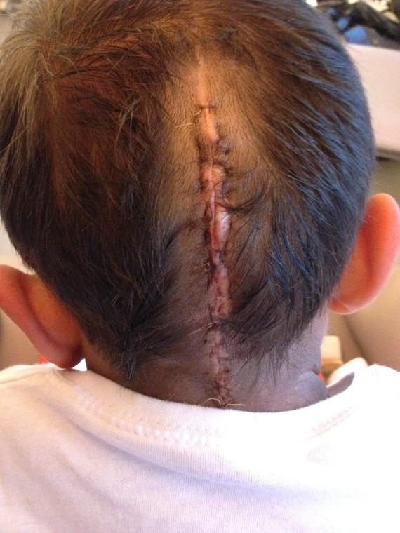 cicatrice J2