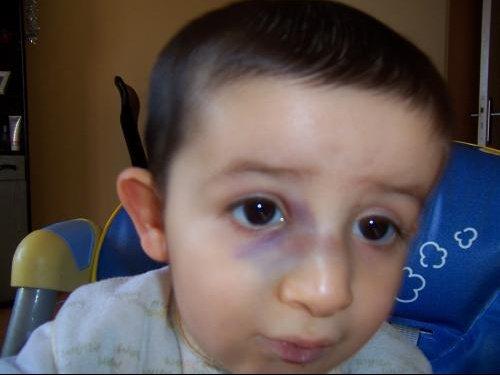Tym o est tomb sur le nez photos news apres visite orl b b s de l 39 ann e forum - Bosse sur le nez apres coup ...