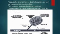 -THOMOSYNTHESE -ECHOGRAHIE MAMMAIRE DUCTALE- Dr G-KERN- GRENOBLE-_Page_023