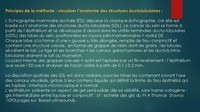 -THOMOSYNTHESE -ECHOGRAHIE MAMMAIRE DUCTALE- Dr G-KERN- GRENOBLE-_Page_029