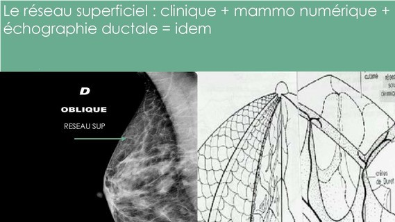-THOMOSYNTHESE -ECHOGRAHIE MAMMAIRE DUCTALE- Dr G-KERN- GRENOBLE-_Page_060