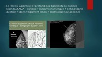 -THOMOSYNTHESE -ECHOGRAHIE MAMMAIRE DUCTALE- Dr G-KERN- GRENOBLE-_Page_061