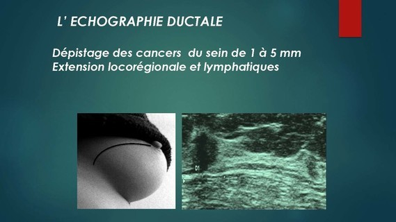 -THOMOSYNTHESE -ECHOGRAHIE MAMMAIRE DUCTALE- Dr G-KERN- GRENOBLE-_Page_079
