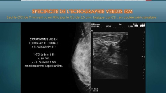-THOMOSYNTHESE -ECHOGRAHIE MAMMAIRE DUCTALE- Dr G-KERN- GRENOBLE-_Page_101