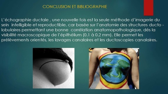 -THOMOSYNTHESE -ECHOGRAHIE MAMMAIRE DUCTALE- Dr G-KERN- GRENOBLE-_Page_120