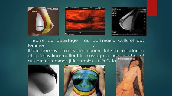-THOMOSYNTHESE -ECHOGRAHIE MAMMAIRE DUCTALE- Dr G-KERN- GRENOBLE-_Page_137
