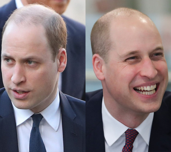 meghan-markle-pushed-prince-william-shave-head-embed